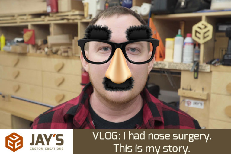 I had nose surgery. This is my story.